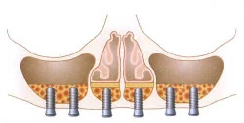 Maxila enxertada e com a colocação de implantes.
