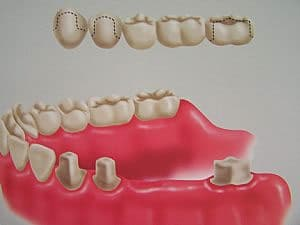É utilizada quando há vários dentes perdidos. Seus componentes são: dentes suporte, dentes pilares, retentores, pônticos e conectores.