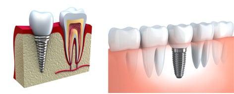 A prótese fixa é a substituição de um ou mais dentes perdidos e permite a reabilitação da mastigação, fala ou sorriso do paciente