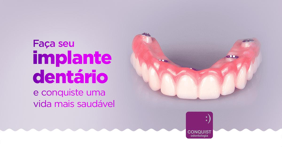 Agende implante dentario